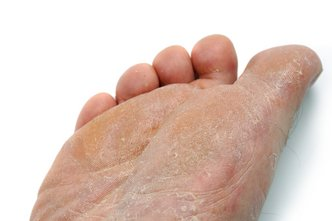 Los Angeles Podiatrist | Los Angeles Athlete's Foot | CA | Arkady Kaplansky |