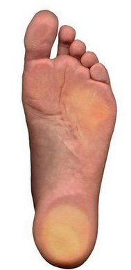 Los Angeles Podiatrist | Los Angeles Flatfoot (Fallen Arches) | CA | Arkady Kaplansky |