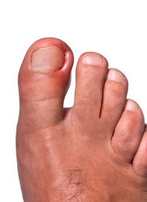 Los Angeles Podiatrist | Los Angeles Ingrown Toenails | CA | Arkady Kaplansky |
